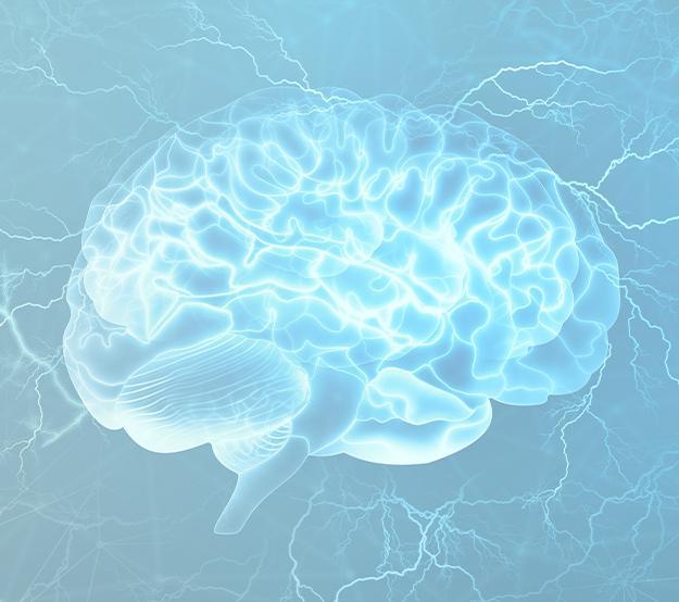 银引发大脑